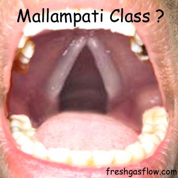 crazy_mallampati
